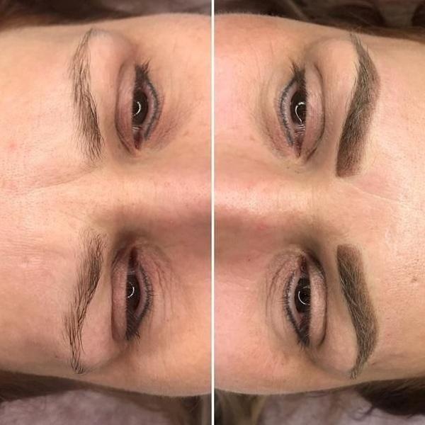 efekty zabiegów kosmetycznych 113