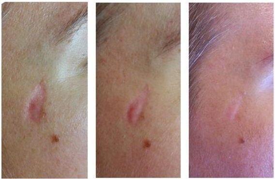 efekty zabiegów kosmetycznych 116