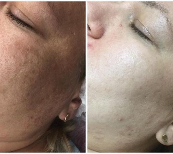 efekty zabiegów kosmetycznych 117