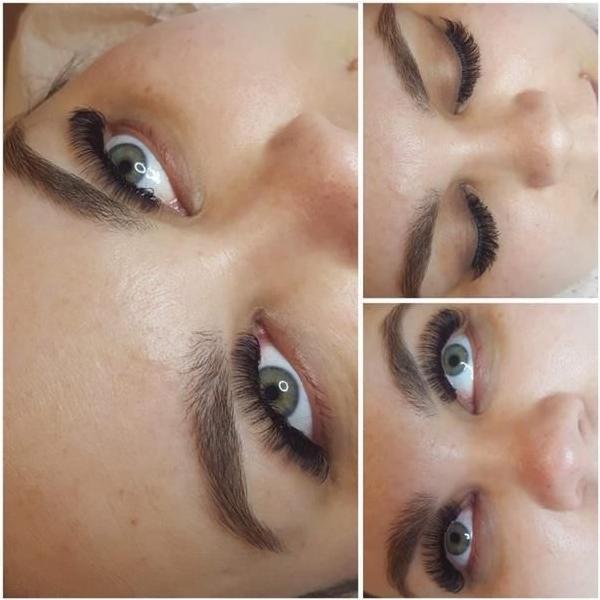 efekty zabiegów kosmetycznych 119