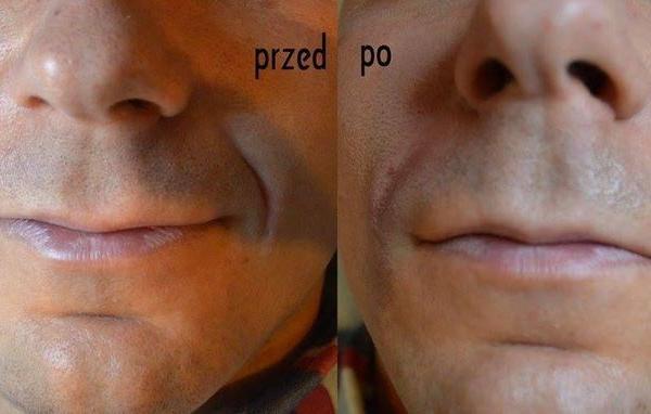 efekty zabiegów kosmetycznych 12