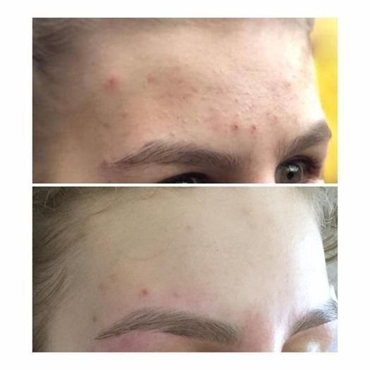 efekty zabiegów kosmetycznych 124