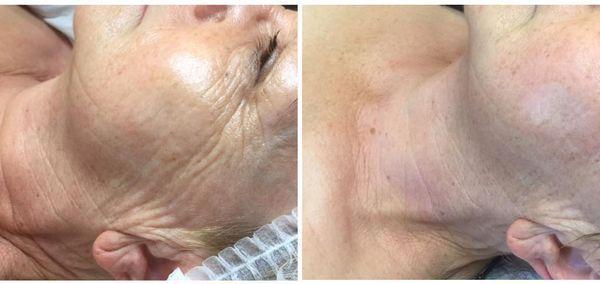 efekty zabiegów kosmetycznych 126