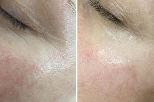 efekty zabiegów kosmetycznych 127