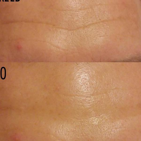 efekty zabiegów kosmetycznych 14