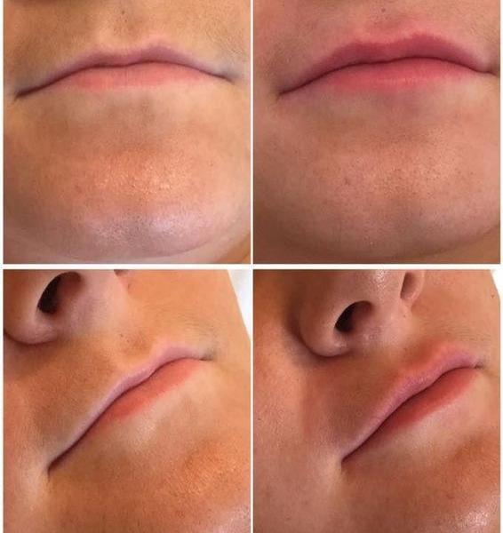 efekty zabiegów kosmetycznych 19