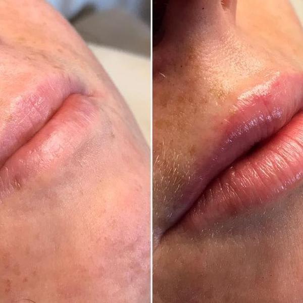 efekty zabiegów kosmetycznych 20
