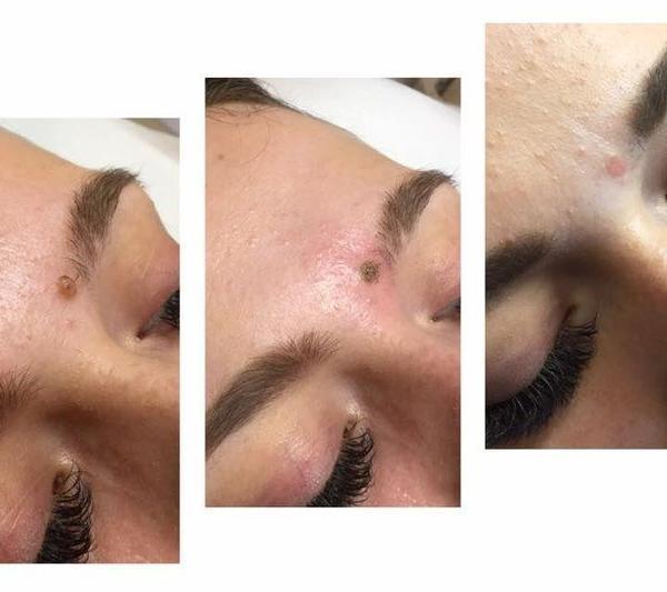 effekty-zabiegow-kosmetycznych-22