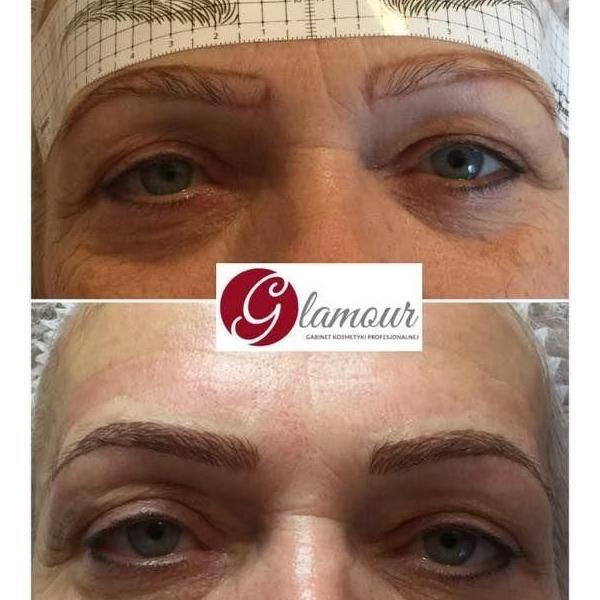 efekty zabiegów kosmetycznych 24