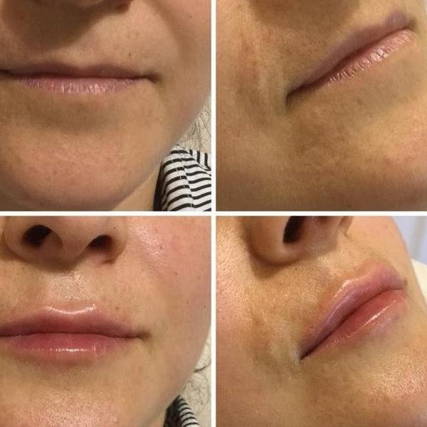 efekty zabiegów kosmetycznych 28