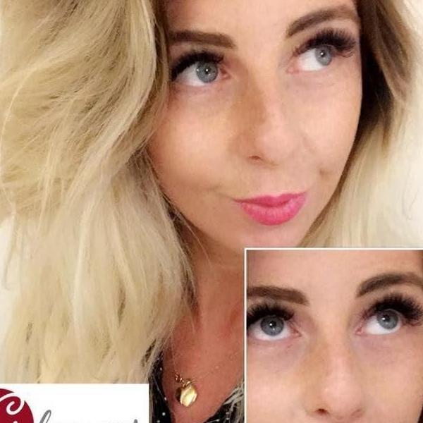 efekty zabiegów kosmetycznych 39