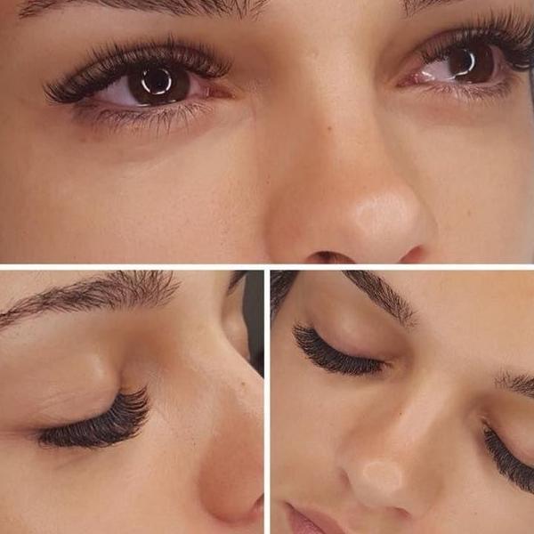 efekty zabiegów kosmetycznych 43
