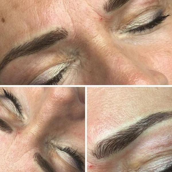 efekty zabiegów kosmetycznych 45
