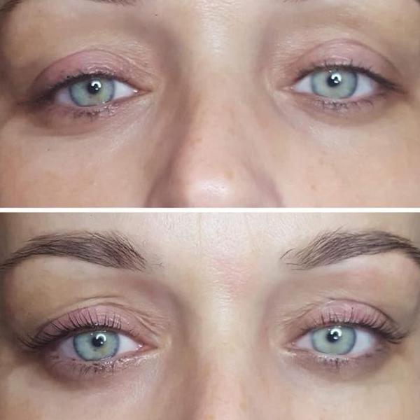 efekty zabiegów kosmetycznych 54