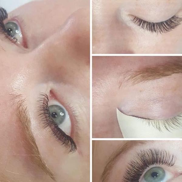 efekty zabiegów kosmetycznych 55