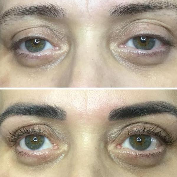 efekty zabiegów kosmetycznych 56