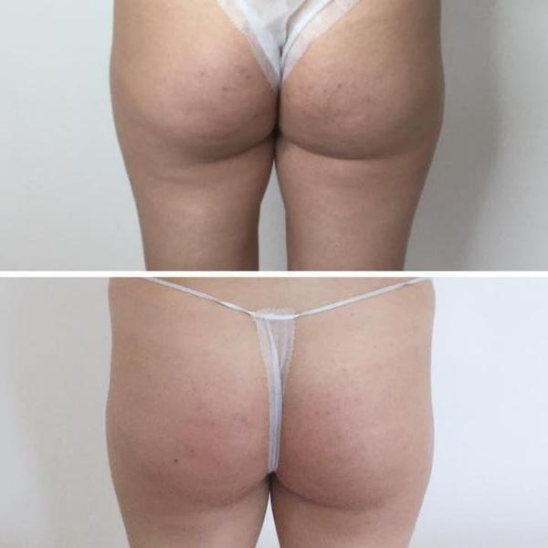 efekty zabiegów kosmetycznych 57