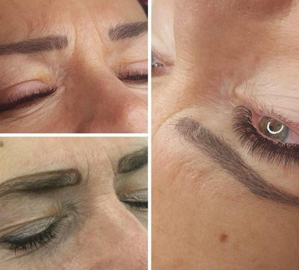 efekty zabiegów kosmetycznych 58