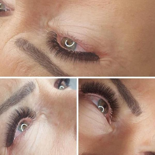 effekty-zabiegow-kosmetycznych-60