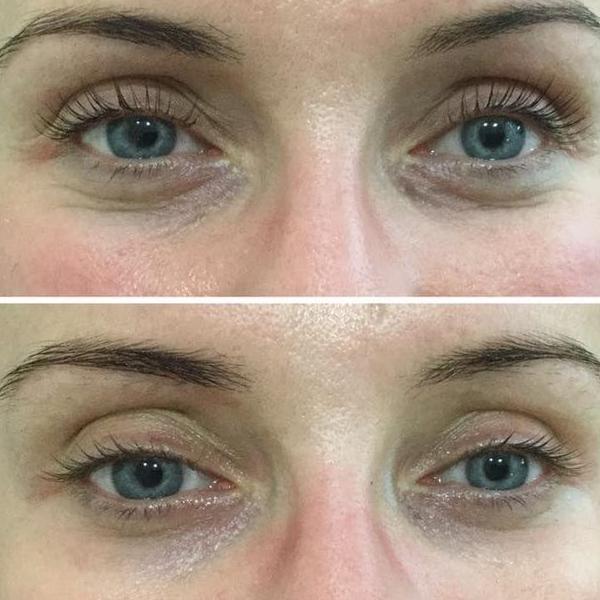 efekty zabiegów kosmetycznych 62