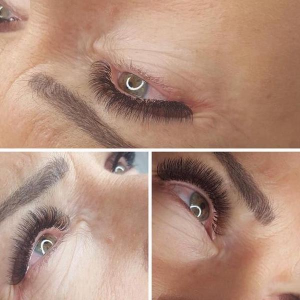 efekty zabiegów kosmetycznych 64