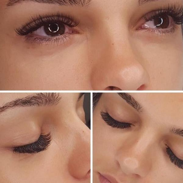 efekty zabiegów kosmetycznych 65