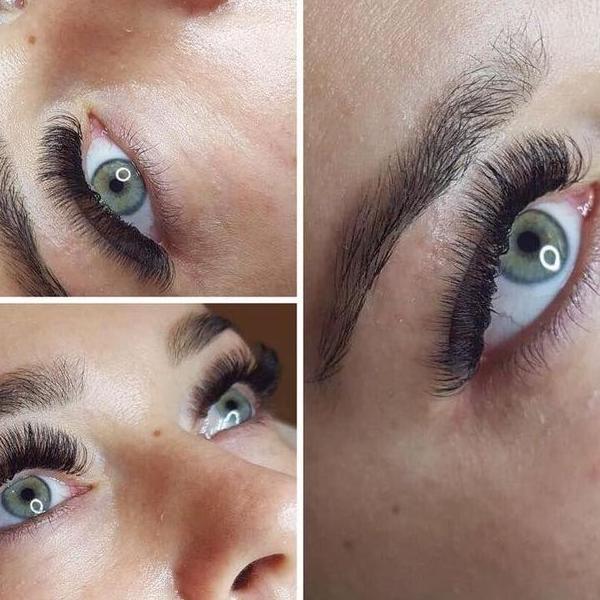 efekty zabiegów kosmetycznych 67