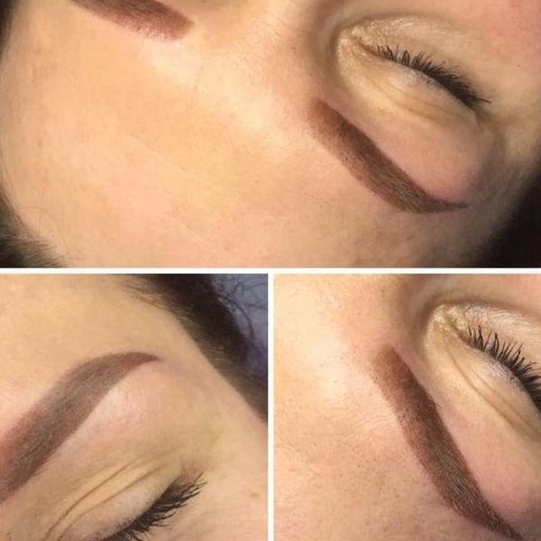 efekty zabiegów kosmetycznych 75