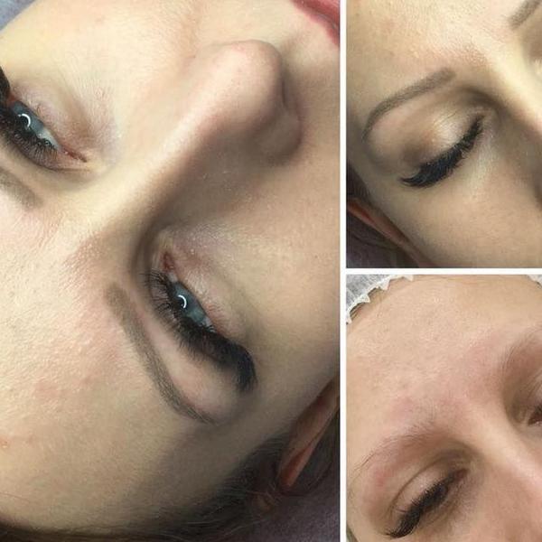 efekty zabiegów kosmetycznych 76