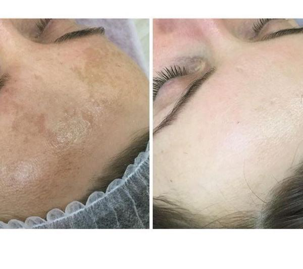 efekty zabiegów kosmetycznych 84