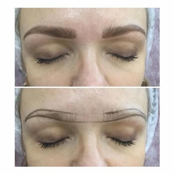 efekty zabiegów kosmetycznych 87