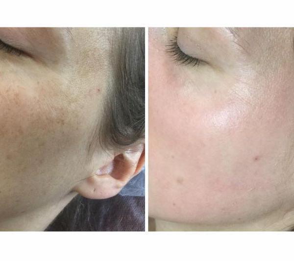 efekty zabiegów kosmetycznych 88