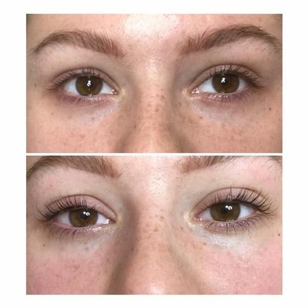 effekty-zabiegow-kosmetycznych-89