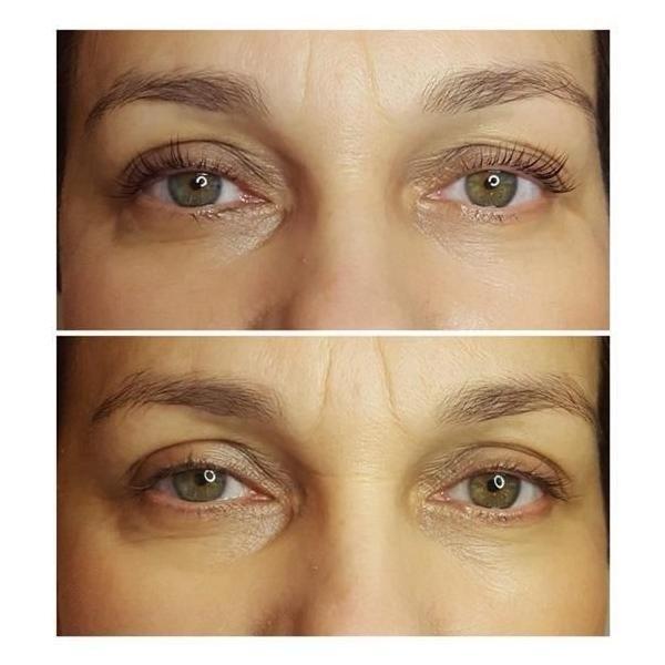 efekty zabiegów kosmetycznych 91