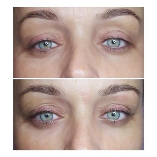 effekty-zabiegow-kosmetycznych-92