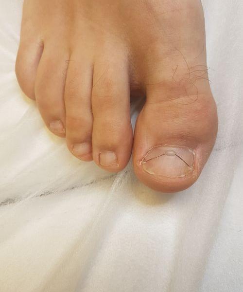 klamra na paznokciu 2